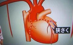 陛下の心臓手術